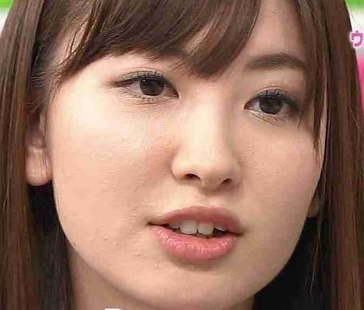 小嶋陽菜肌荒れ画像④