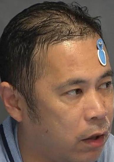 岡村隆史ハゲ画像