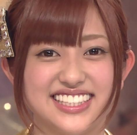 菊地亜美歯整形後画像