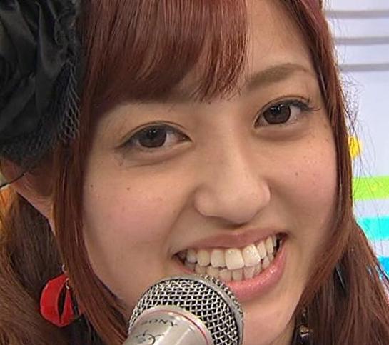 菊地亜美歯整形前画像