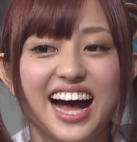 菊地亜美歯整形前画像②