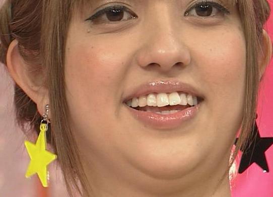 菊地亜美歯整形前画像④